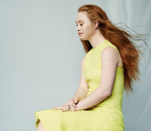 Australian model Madeline Stuart wearing a yellow dress