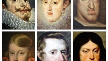 Paul Ehrlich On The Problems Of The Modern Jaw Which Is Becoming Generally Too Small Also Royal Bloodlines Habsburg Jaw Habsburg Lip Or Austrian Lip Schwarzschild C0
