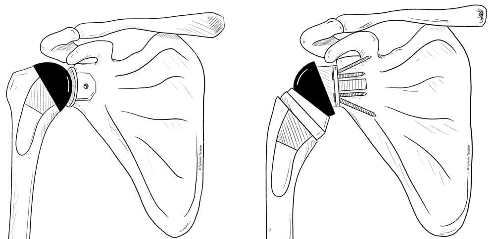 Prothèses épaule