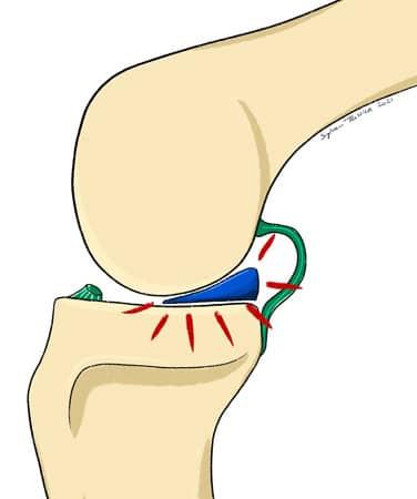 Le ménisque du genou