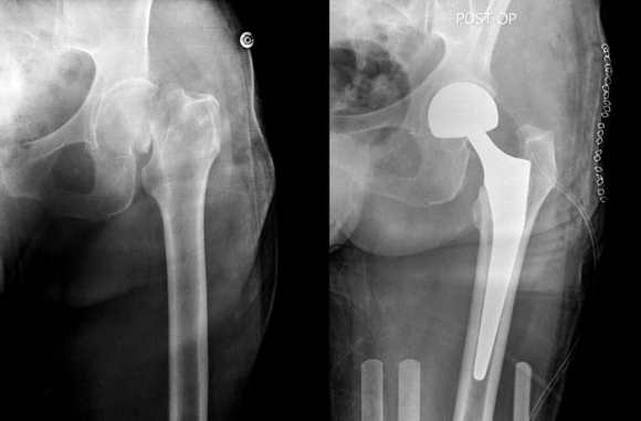 PIH sur fracture