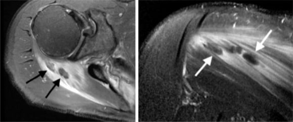 Echographie calcifications