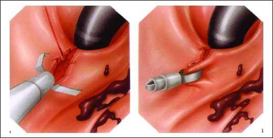 endo-clip-1.jpg