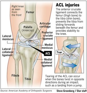 ACL Tear injury explained