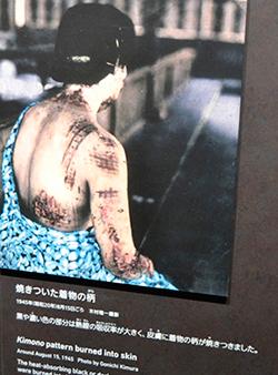 El recuerdo de ese espeluznante suceso, que ocasionó la muerte instantánea a más de 140.000 personas en Hiroshima y más de 70.000 en Nagasaki