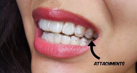 Reaksi Alergi Terhadap Invisalign- Global Estetik Dental Care