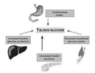 Global Health for Dummies - Introducing......Diabetes Mellitus (2/3)
