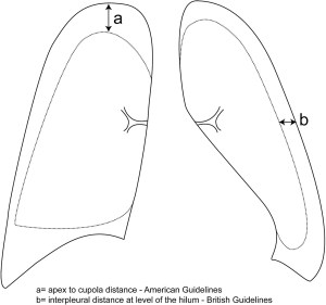 MacDuff A, Arnold A, Harvey J Management of spontaneous pneumothorax: British Thoracic Society pleural disease guideline 2010 Thorax 2010;65:ii18-ii31.