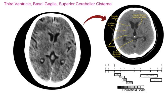 3rd Ventricle, Basal Ganglia, Superior Cerebellar Cistern