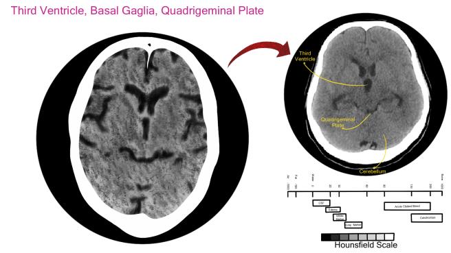 3rd Ventricle, Basal Ganglia, Quadrigeminal Plate