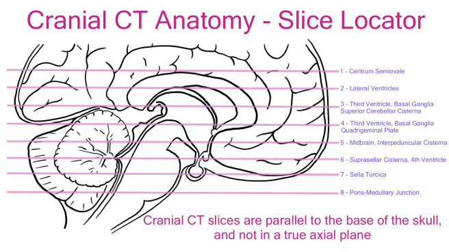 cranial CT slices