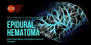 epidural hematoma