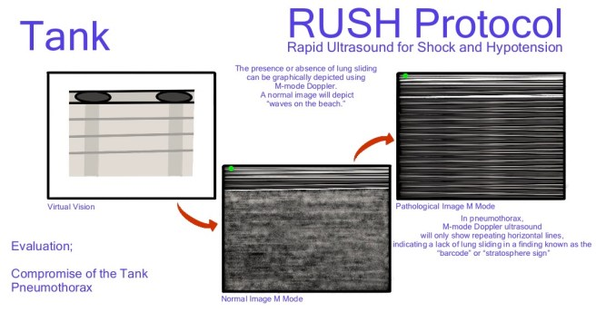 Rush lung