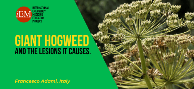 Giant Hogweed…and the Lesions it Causes.