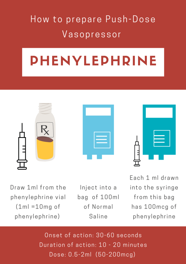 push dose phenilephrine