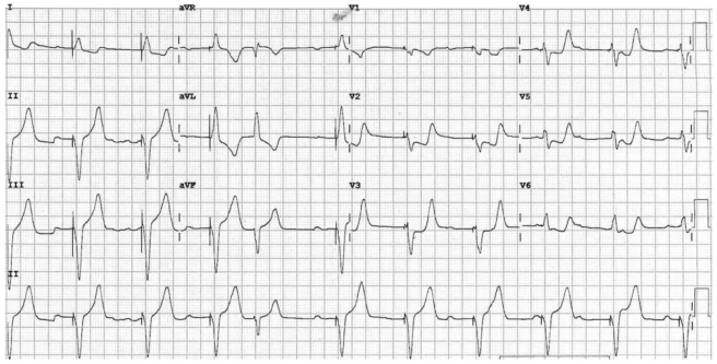 Ventricular paced rhythm with Concordant ST depression in V2 to V6