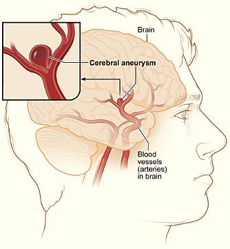 الأنورسما الدماغية