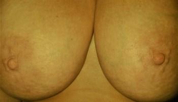 bountiful breasts