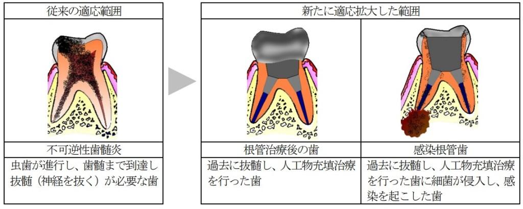 歯髄再生治療の適応拡大