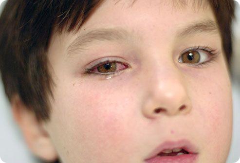 Что делать если продуло глаз