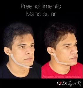 Conheça o Preenchimento Mandibular, procedimento que melhora o Contorno, Definição e ângulo da mandíbula