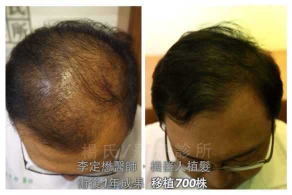 dr lee 700 grafts