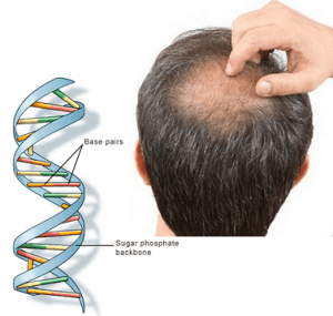 Whats-the-connection-between-DNA-and-hair-loss