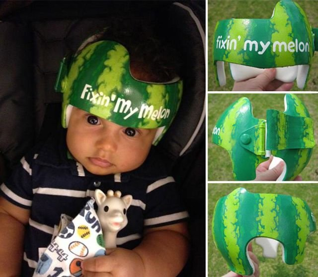 шлем для черепа