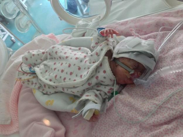 День 44. Наконец-то наша дочь дышит самостоятельно!