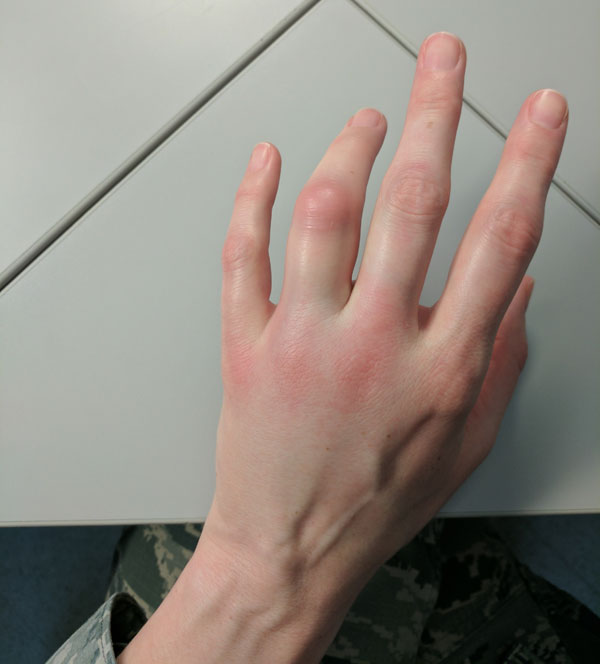arthritis left ring finger