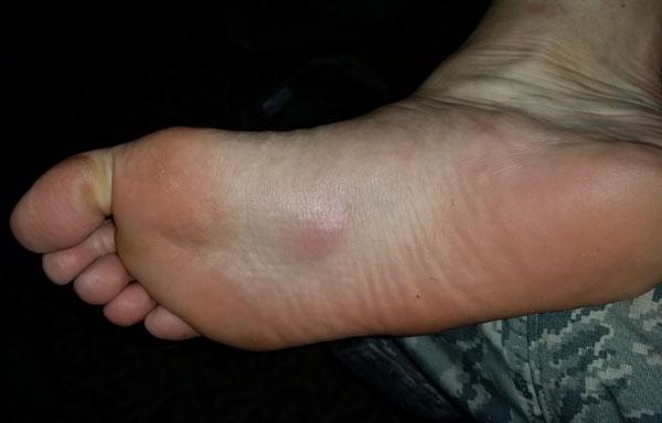 erythema nodosum foot