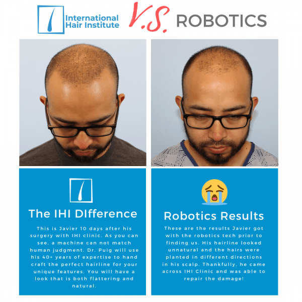 Robotics Hair Transplant