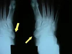有痛性外脛骨2