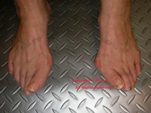 外反母趾。合う靴と合わない靴で見た目も変わります。