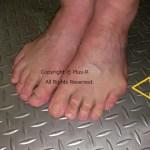 内反小趾と浮きゆび。小ゆびが靴に当たって痛い!