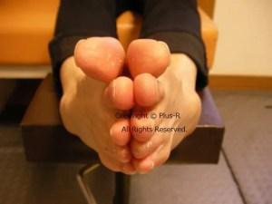 足関節捻挫後遺障害による足首の不安定性への対処。