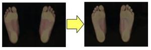 ハイアーチが靴とインソールで2ヶ月で正常になった。