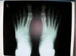 足のレントゲン