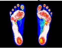 足の検査計測