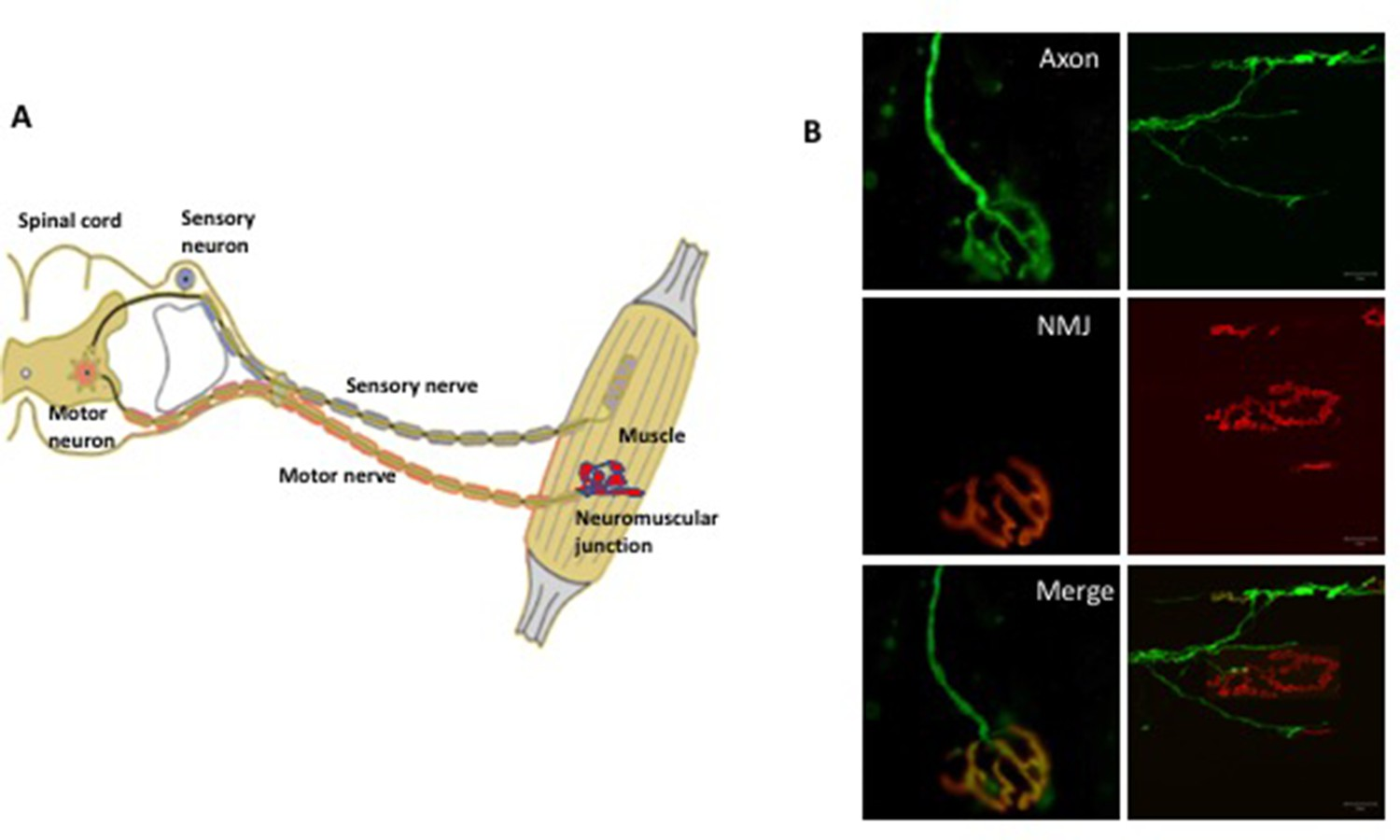 Neuromuscular Disease Protecting The Nerve Terminals