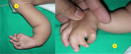 Figure 3 a & b: Clinical picture of child with fetal valproate syndrome showing syndactyly of 2nd web space and hypoplastic thumb and index finger