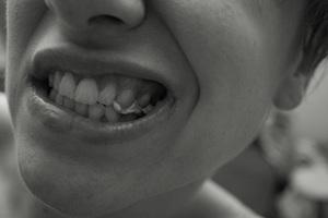 歯並び 自力 治す 方法 矯正 おすすめ