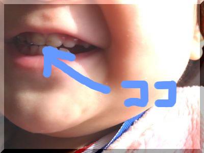 1歳児の茶渋汚れ虫歯