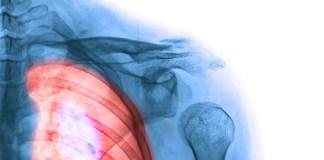 Akciğer Kanseri Teşhisi Kondu