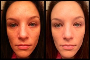 12 weeks using tretinoin for acne