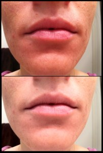6 weeks using tretinoin for acne