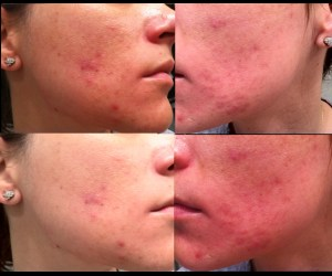 8 weeks using tretinoin for acne