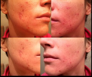 9 weeks using tretinoin for acne