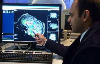 Dettagliata immagine a risonanza magnetica anatomica del cervello