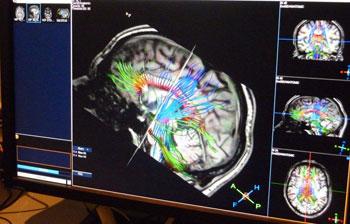 Scansione cervello